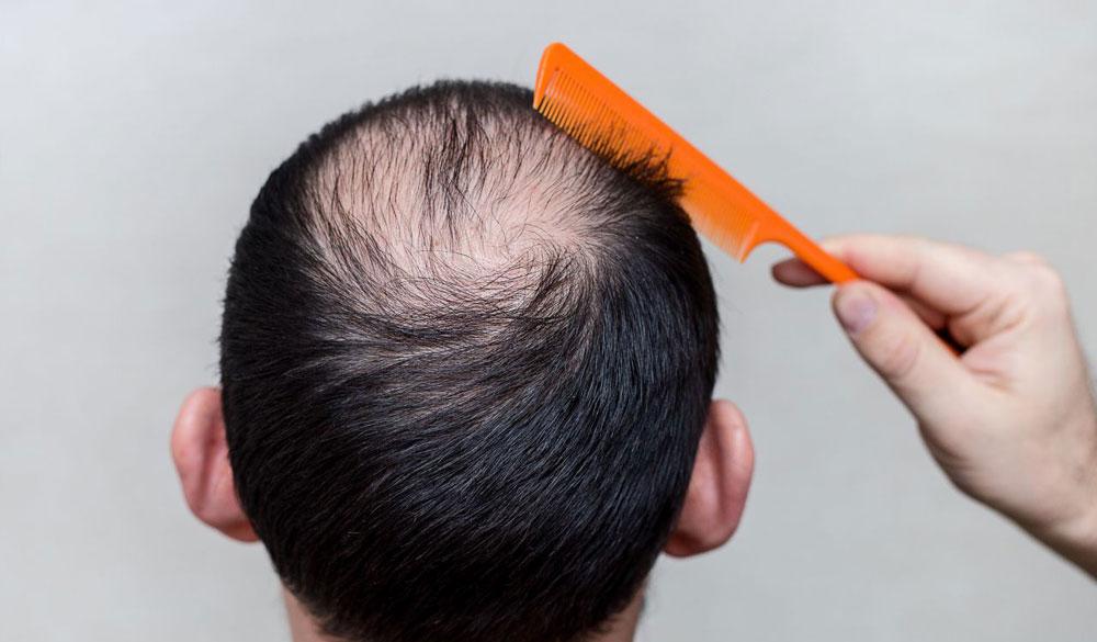 Tema de Interés: Alopecía o caida del cabello
